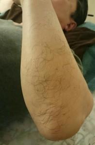 Tさん脱毛前の左腕の写真