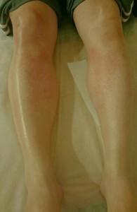 Tさん脱毛後の両足、膝から下の写真